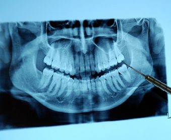 photo of an x-ray for Sylvan Heights Dental
