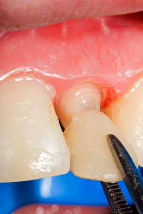 How to Care for Dental Veneers on a Daily Basis