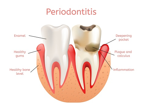 Periodontal therapy treatments from Sylvan Heights Dental
