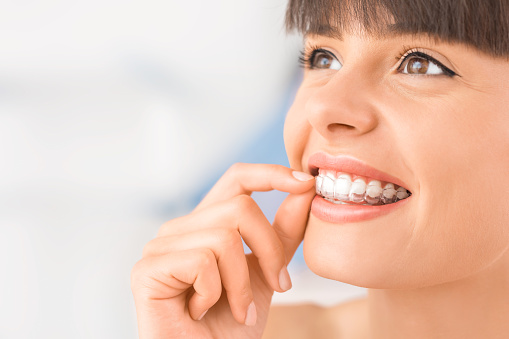 Clear Invisalign aligners at Sylvan Heights Dental
