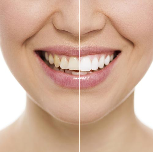 Teeth whitening treatment at Sylvan Heights Dental